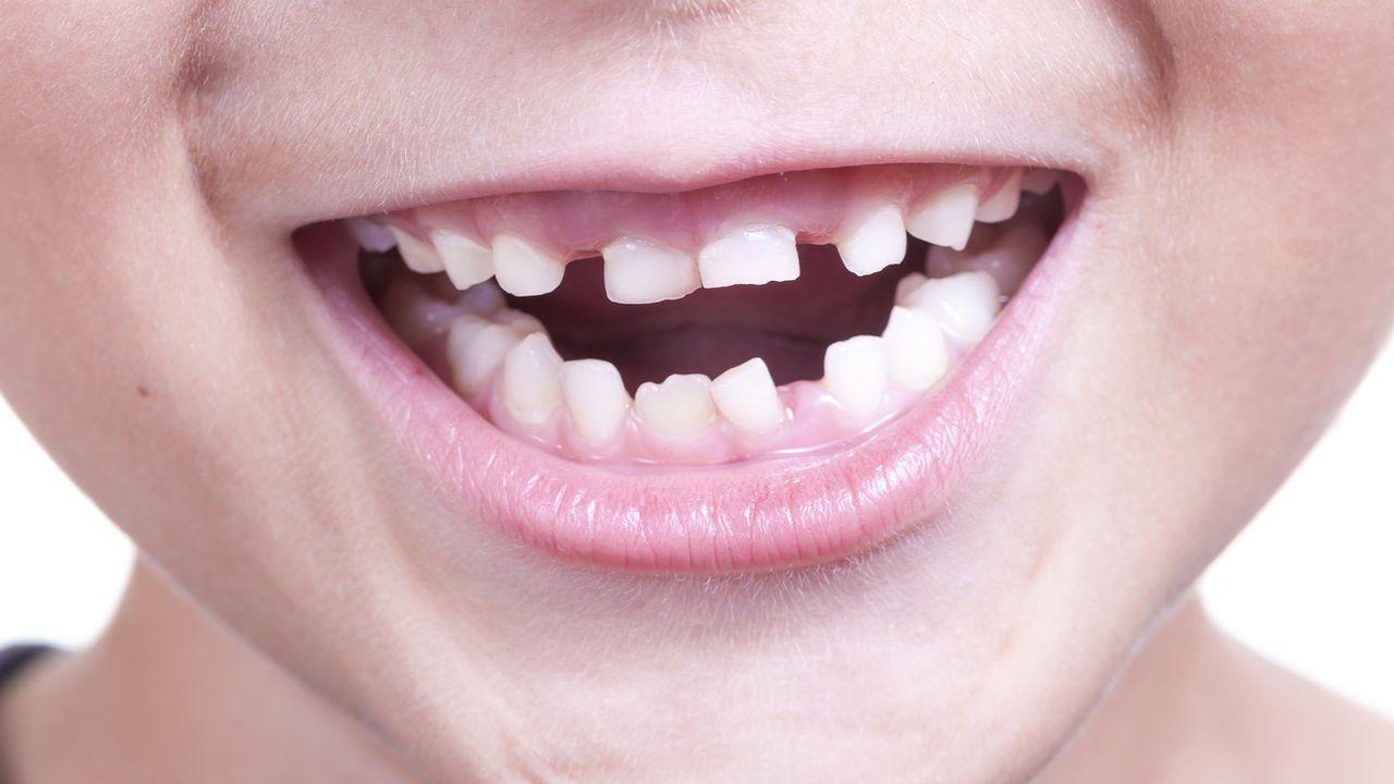 Молочные зубы требуют обязательного ухода
