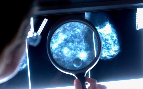 О риске инфаркта женщины узнают по маммограмме