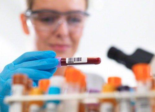 Самые тяжелые болезни отыщет универсальный анализ крови