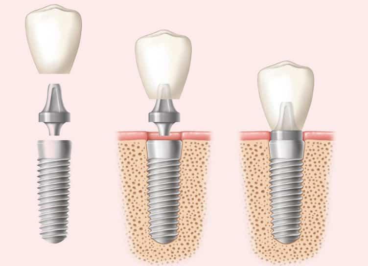 Зубные коронки: виды и особенности
