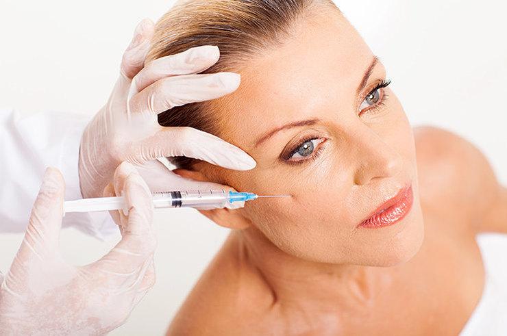 Плазмолифтинг лица: все, что нужно знать о PRP-терапии