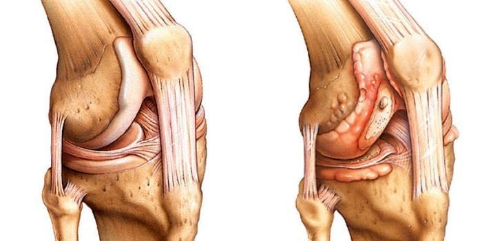 Расслоение колена при остеохондрите