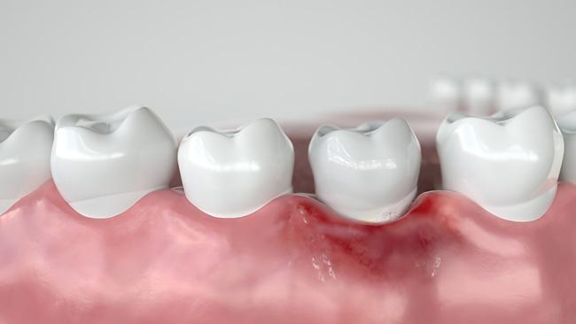 Зубные импланты: больно ли их ставить и как избежать осложнений