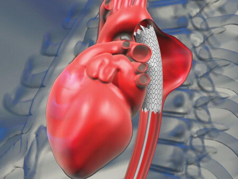 Врачи назвали симптомы разрыва аорты