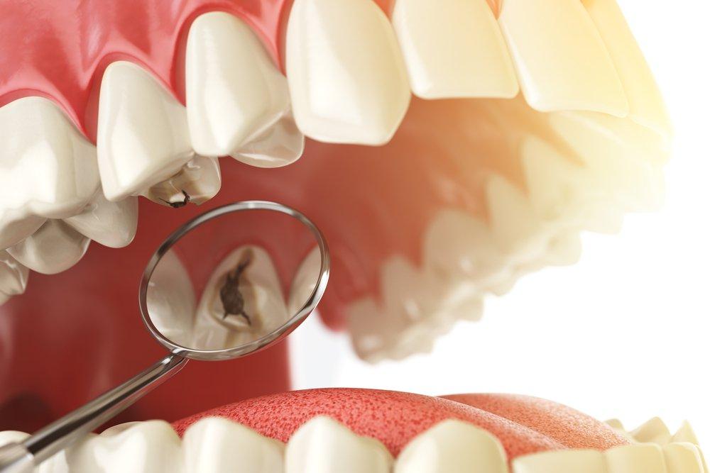 Как лечат кариес в стоматологии?