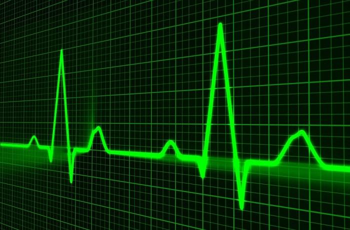 Как быстро определить, есть ли у вас проблемы с сердцем