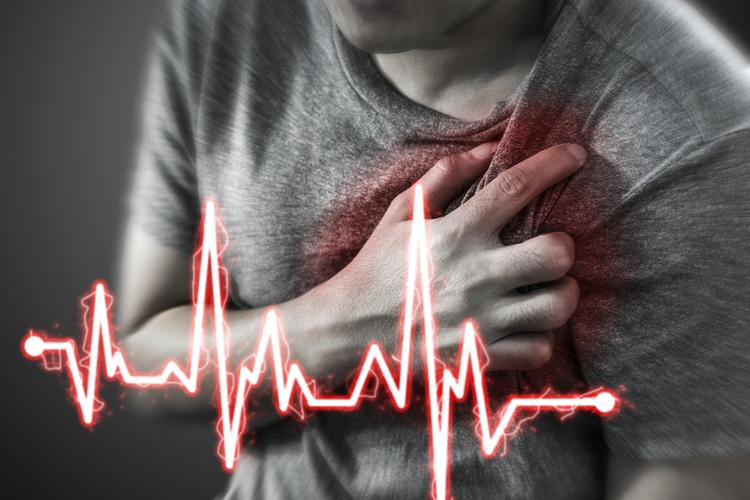 Способы помочь себе при сердечном приступе, если рядом никого нет