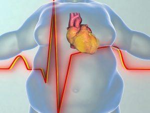 Лишний вес действительно вызывает болезни сердца