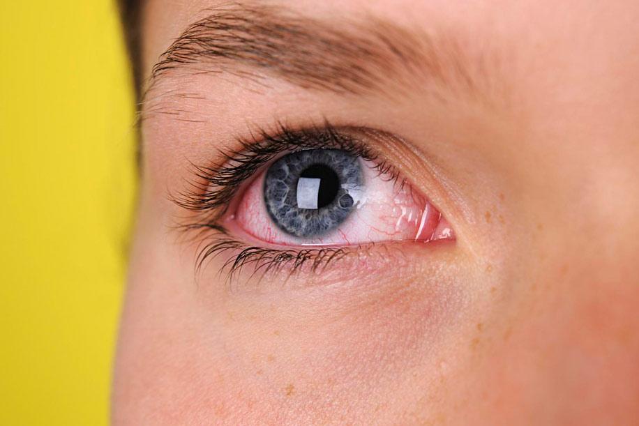 Приступы глаукомы: причины, симптомы, диагностика и лечение