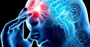 Эти 3 симптома могут быть предвестниками инфаркта головного мозга