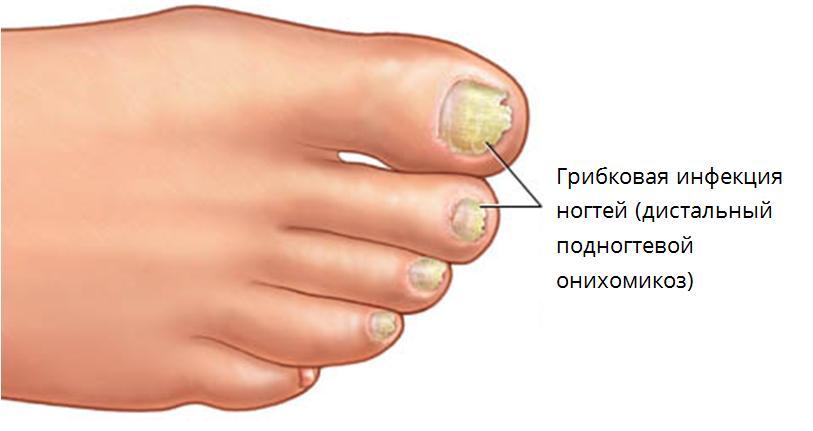 Признаки заболеваний ногтей