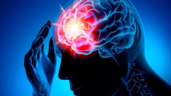 Инсульт: как распознать скрытые симптомы