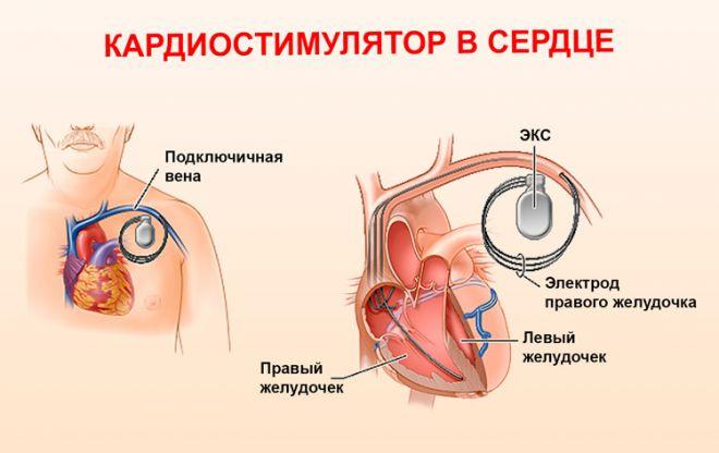 Когда ставится кардиостимулятор и почему следует отправиться на операцию за границу?