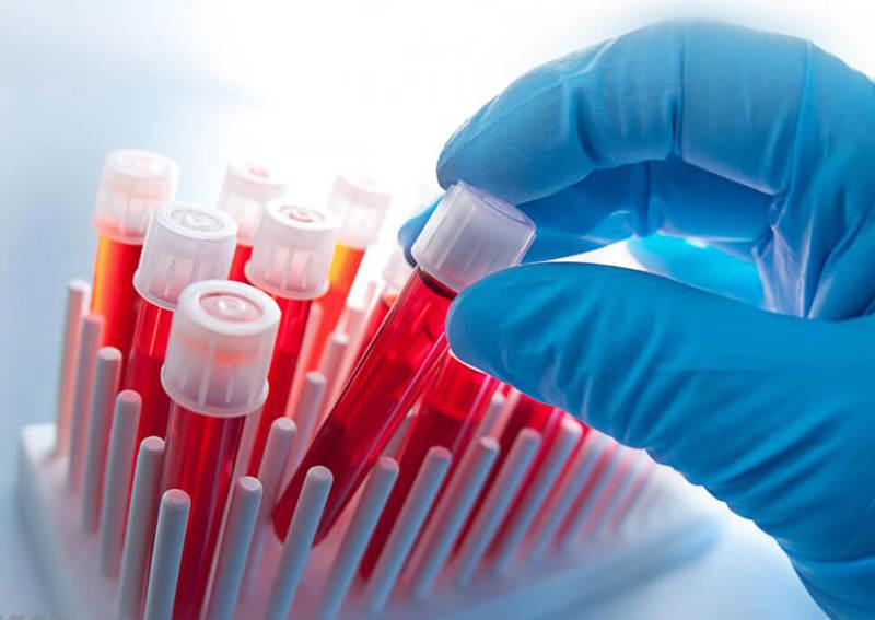 Вязкая кровь: 8 основных симптомов