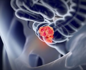 Осложнения, связанные с раком толстой кишки