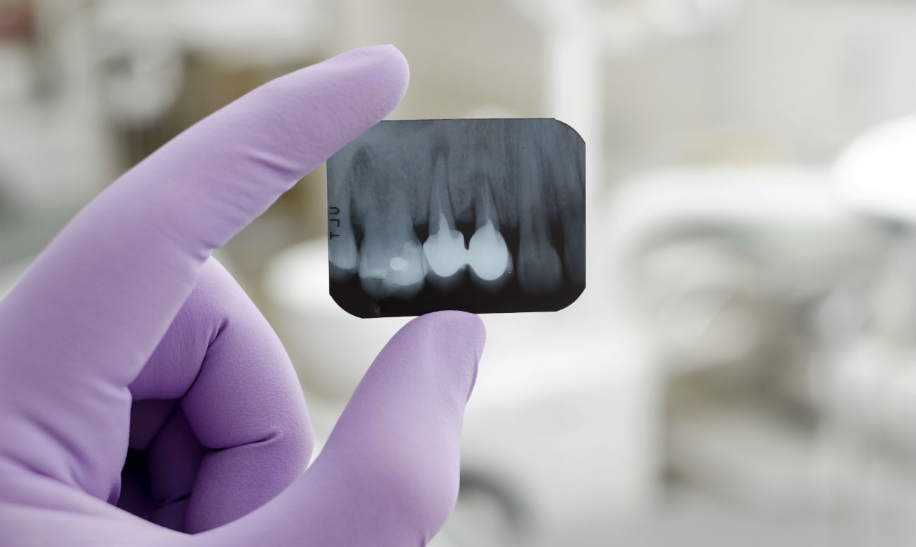 Выполняйте рентген челюстно-лицевой области с рентгенодиагностическим центром Роден