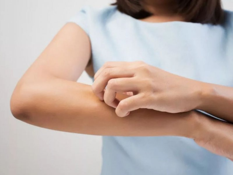 От аллергии до диабета и рака: на что может указывать сухая кожа