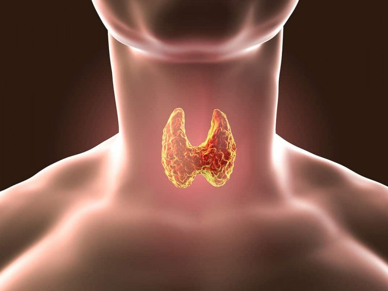 6 причин узлов в щитовидной железе