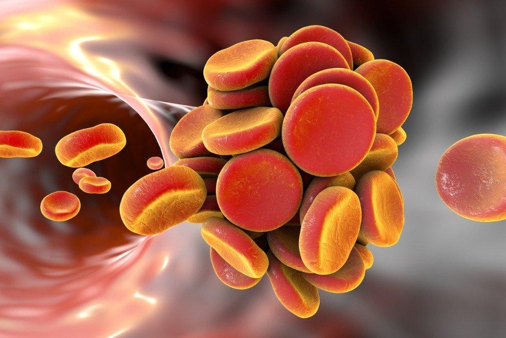 Названы симптомы появления тромбов в сосудах