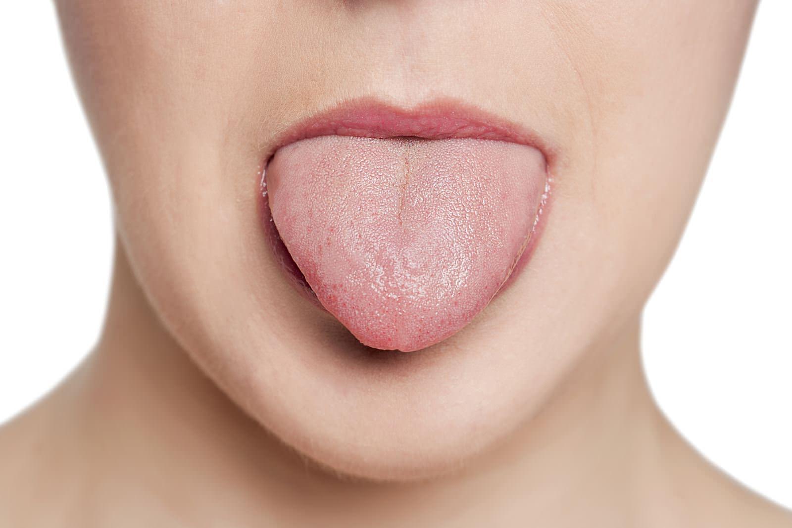 Клиническая картина рака языка