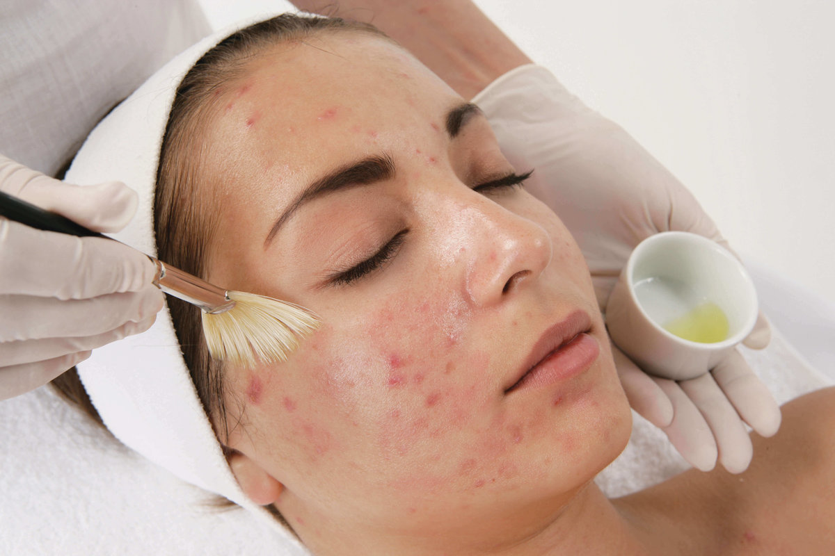 Лечение угрей в косметологии