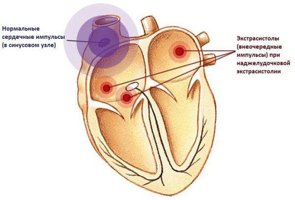 Сердце-бумеранг: 32-летнее исследование доказало связь рациона и болезней сердца