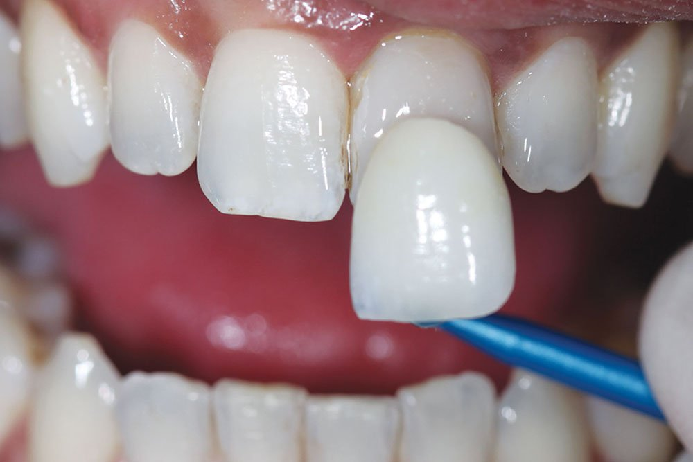 Установка виниров в Центре эстетической стоматологии SDent