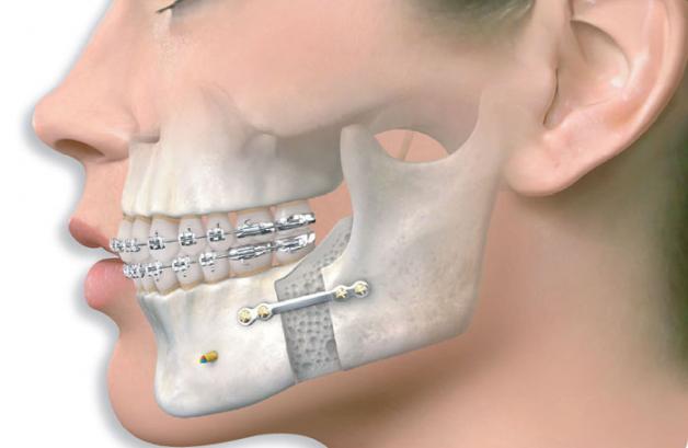 «Я бы к доктору пошел»: челюстно-лицевой хирург