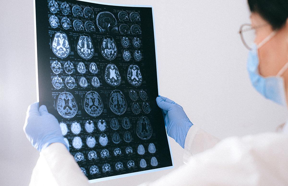Первая помощь при инсульте: что делать до приезда врача