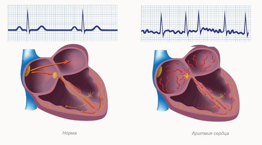 Аритмия сердца – все виды и причины нарушения сердечного ритма