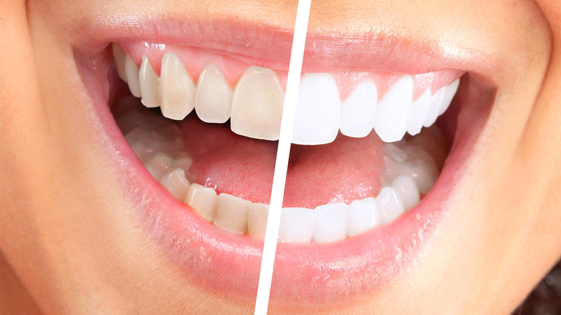 Отбеливаем зубы: нюансы