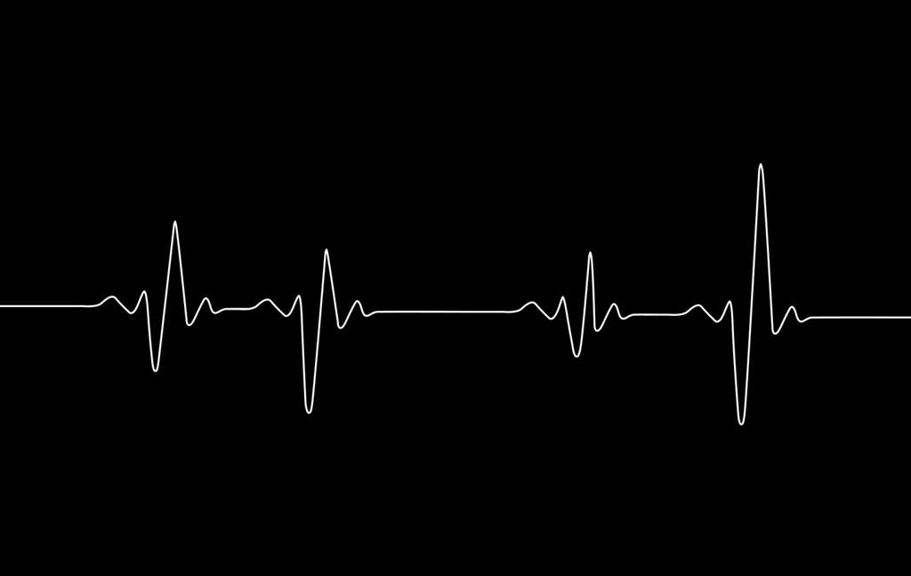 Сердце сильно бьется: что делать?