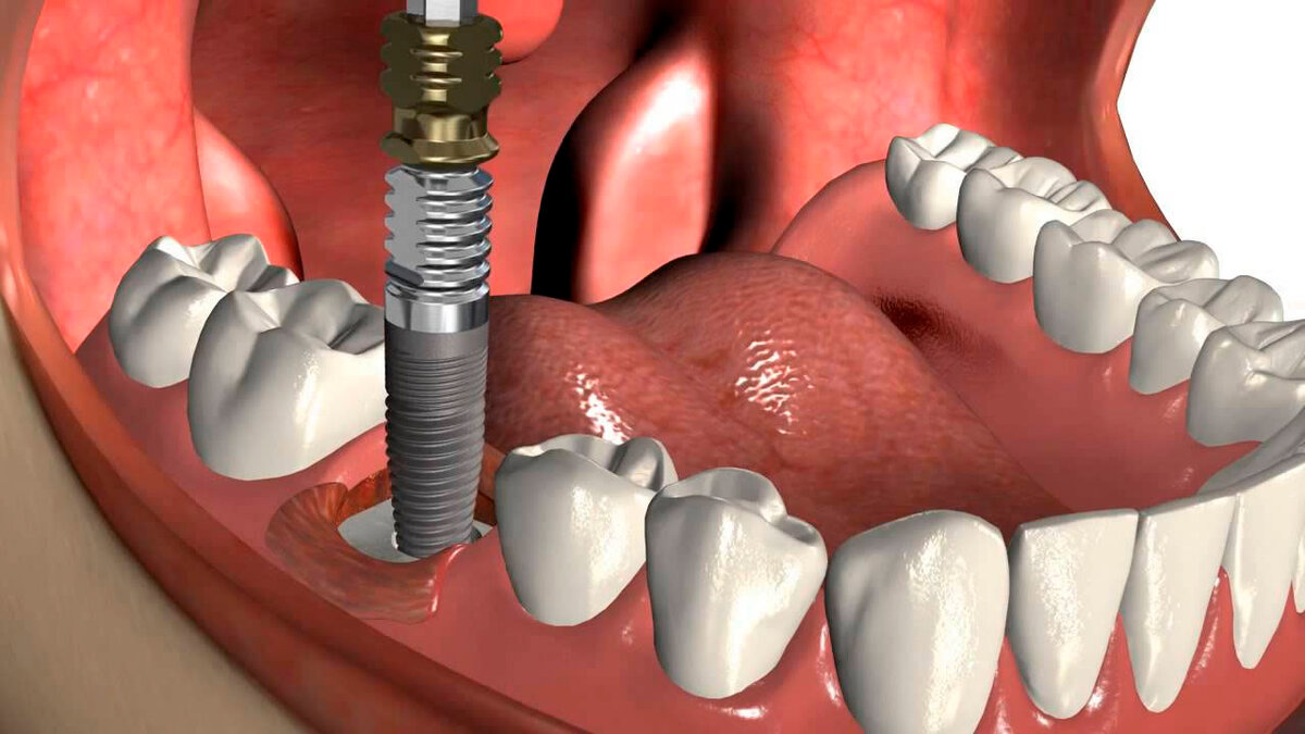 Имплантация зубов в Краснодаре