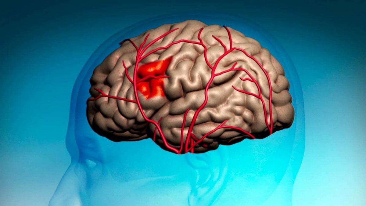 Важно знать! 6 признаков инсульта