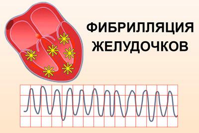 Фибрилляция желудочков сердца — что это