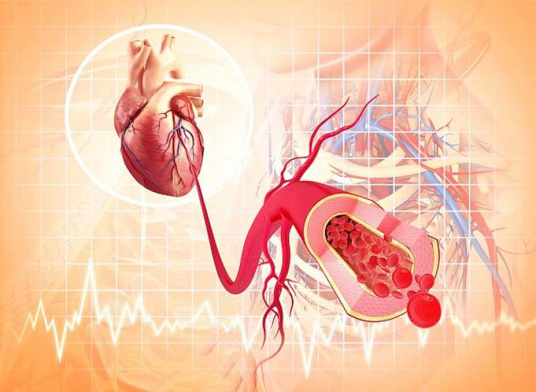 Почему возникает аритмия сердца и чем опасна?