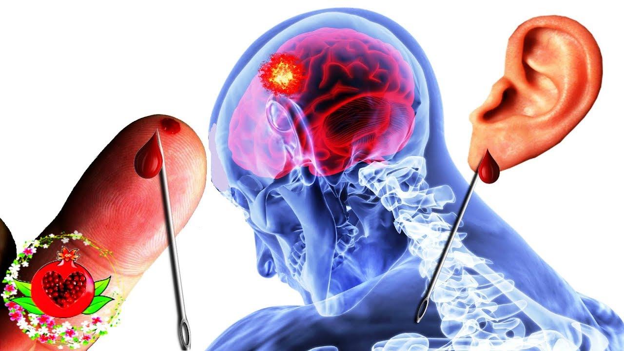 Технология, которая поможет спасти от инсульта
