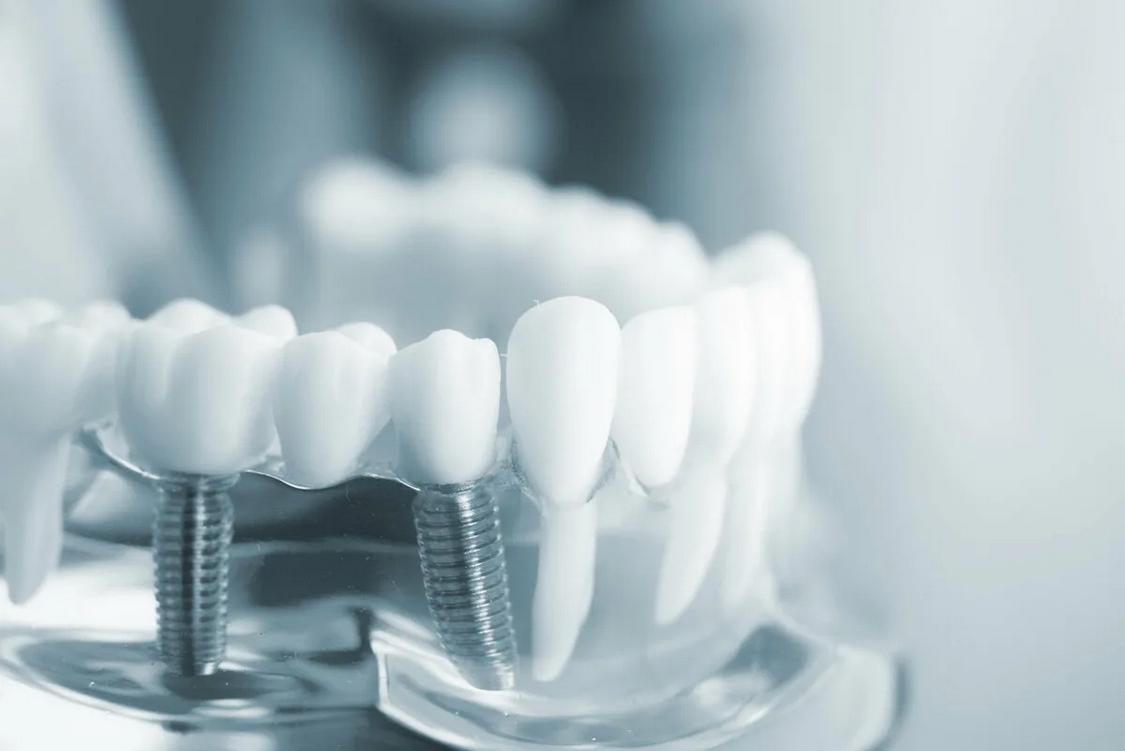 Принципы имплантации зубов