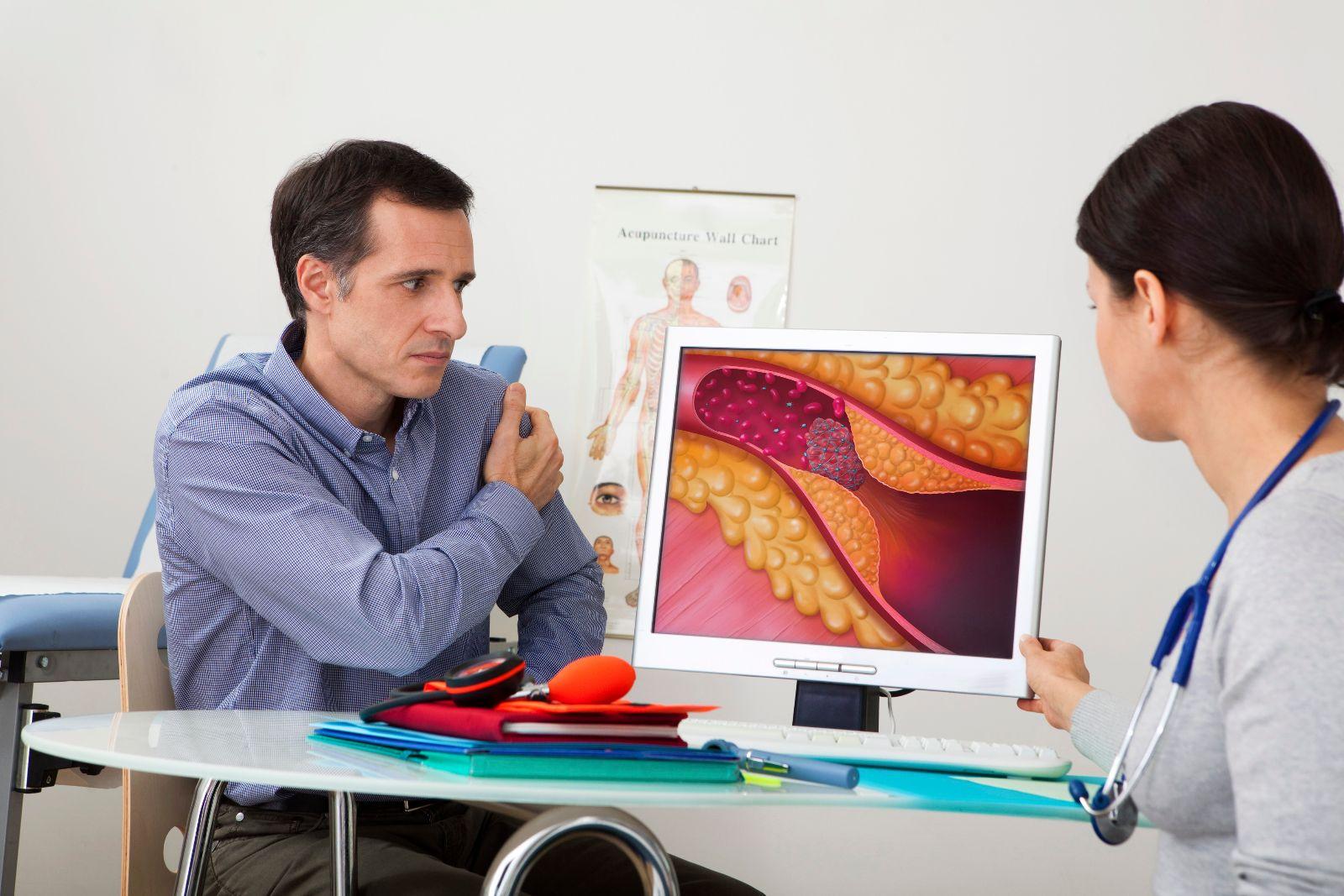 Атеросклероз: чем грозит высокий холестерин?