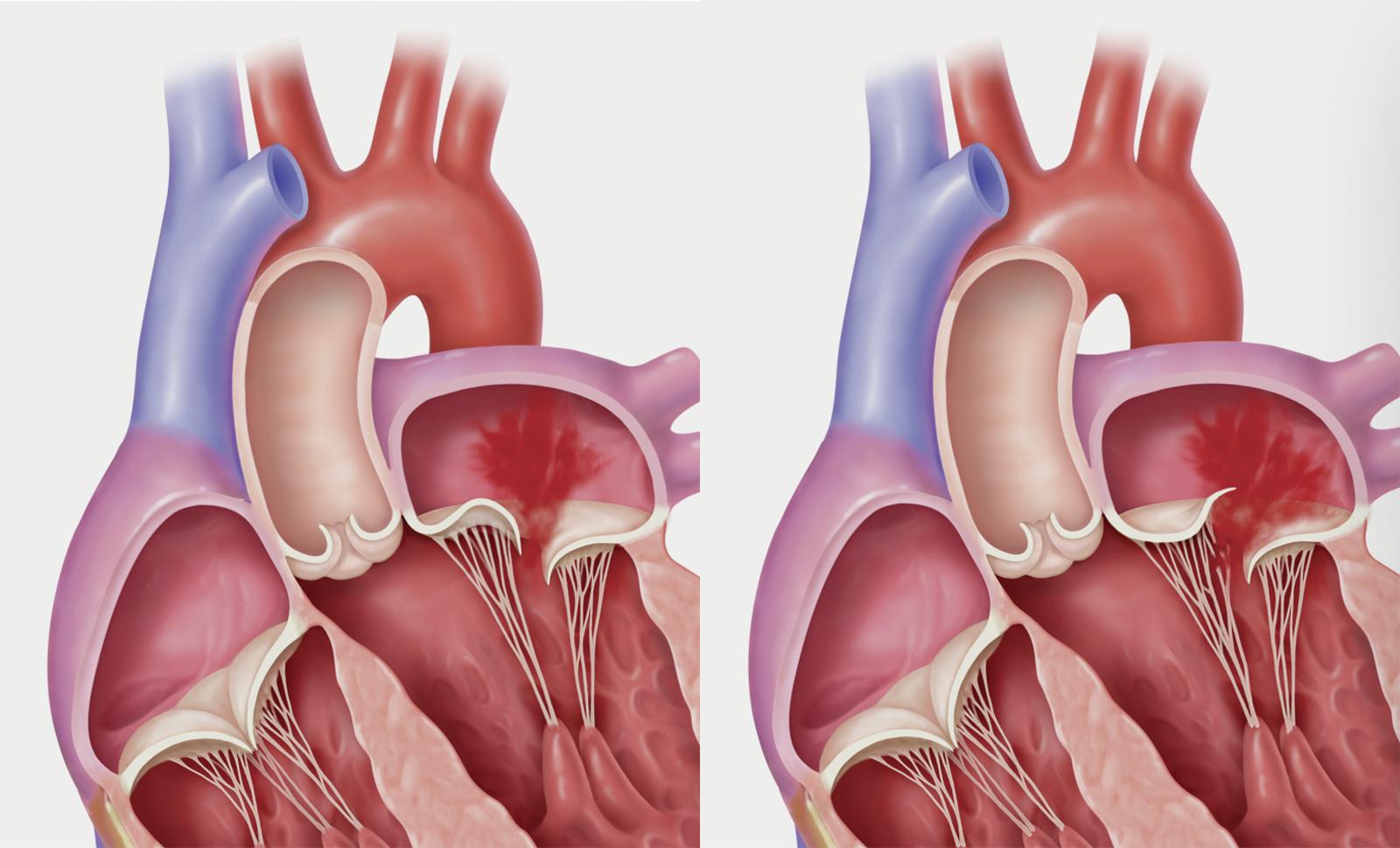 Пролапс сердца