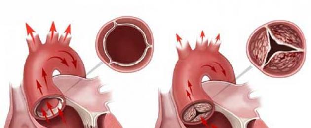 Что такое аортальный стеноз, клинические рекомендации