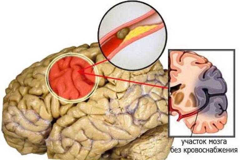 Инсульт ишемический