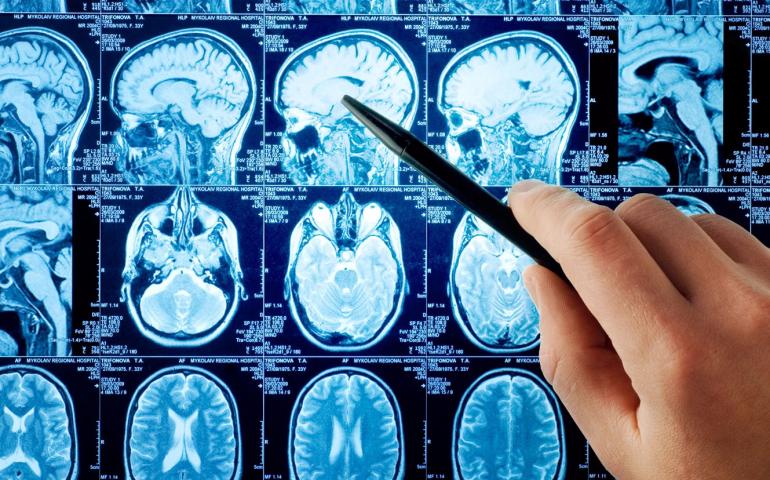 Что такое инсульт и почему он возникает?