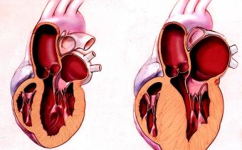 Миокард левого желудочка сердца: проявление гипертрофии. Симптомы увеличения желудочка сердца