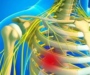 Почему болит в груди: как распознать межреберную невралгию