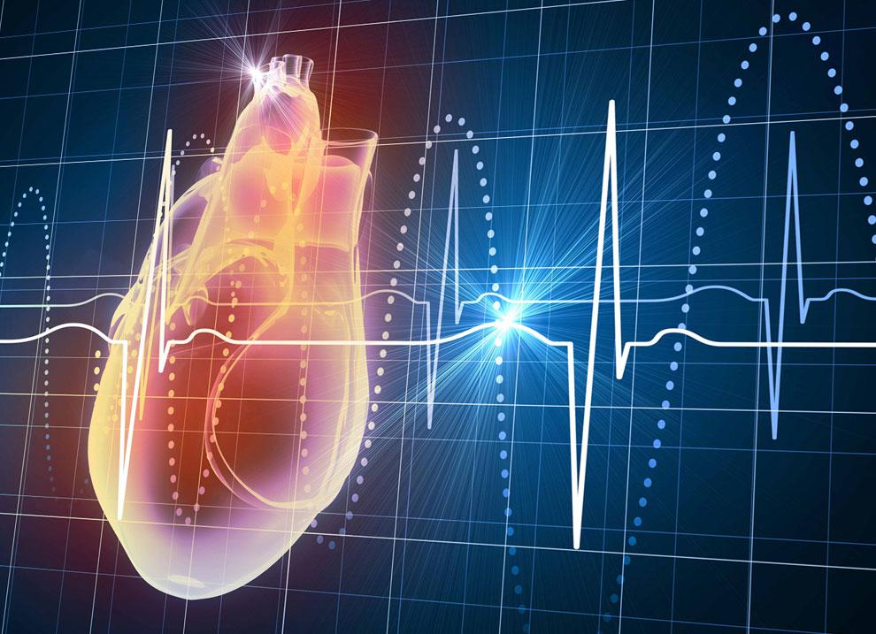 Какие факторы влияют на смертность пациентов с фибрилляцией предсердий?