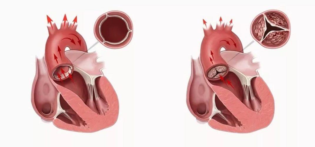 Врожденные пороки сердца (ВПС)