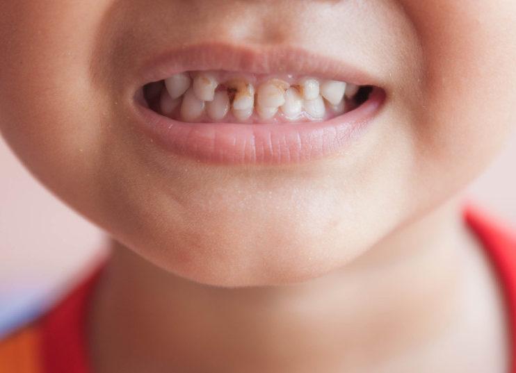 Нужно ли лечить кариес молочных зубов у детей и какова цена за лечение