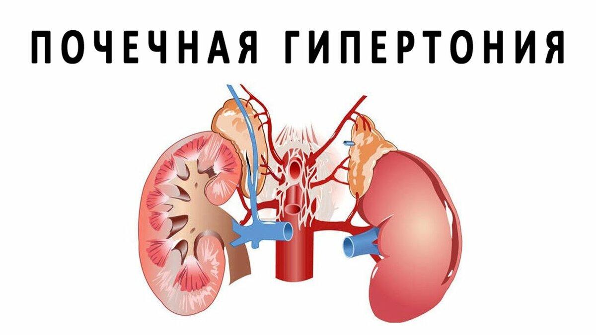 Ренальная гипертензия
