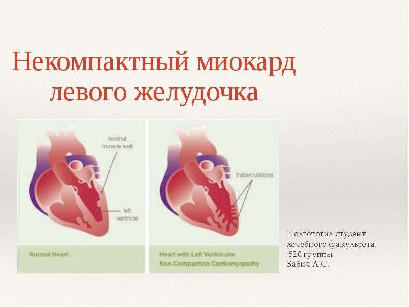Некомпактный миокард левого желудочка